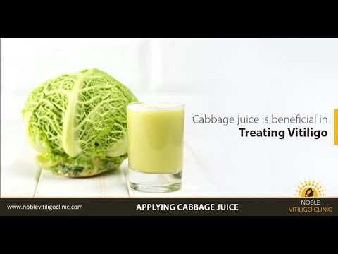 Vitiligo home remedies | www.Noblevitiligoclinic.com