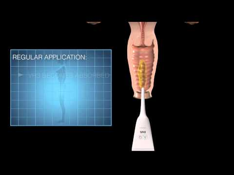 AQ SKIN SOLUTIONS Vaginal Rejuvenation System (VRS)