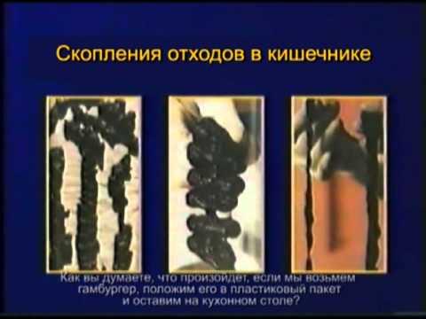 лавакол очищение кишечника отзывы цена харьков