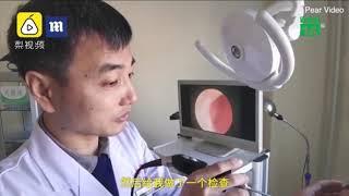Răng mọc trong mũi 20 năm không hề hay biết| VTC14