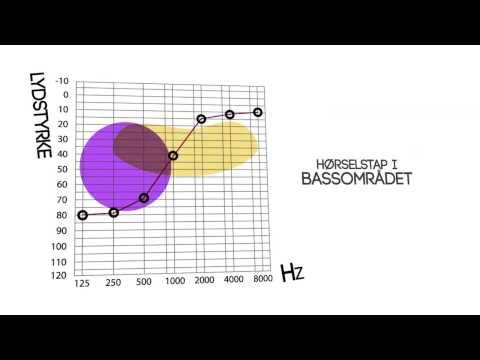 Audiologi animasjon
