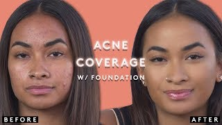 Acne Coverage with Foundation | FENTY BEAUTY