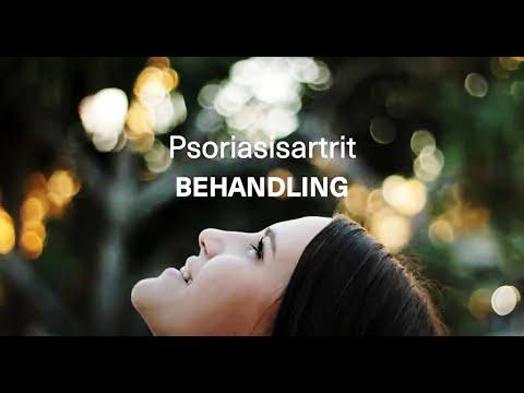 Behandling av psoriasisartrit