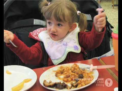 Hip Spica-Older-Child-Eating.mp4