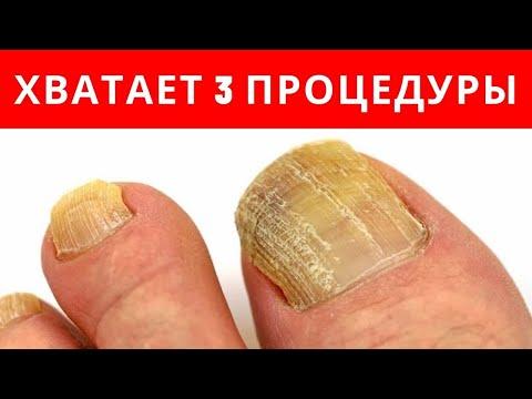 ХВАТАЕТ 3-х ПРОЦЕДУР от ГРИБКА НОГТЕЙ
