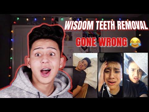 REACTING TO MY WISDOM TEETH VIDEOS   ALEX GUZMAN