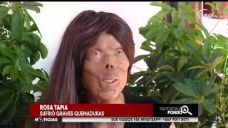 Mujer quemada lucha para reconstruir su rostro - Reportaje completo