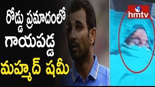 Cricketer Mohammed Shami Injured in a Car Accident..