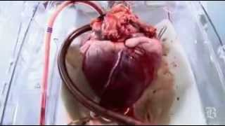 BEATING HEART TRANSPLANT HOSPITAL AMAZING VIDEO