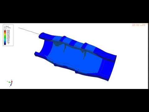 Qure Balloon Catheter media16