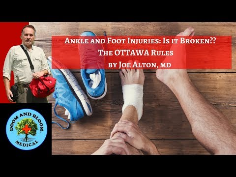 Ankle and Foot Injuries: OTTAWA Rules Explained to Check for Fractures