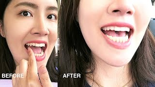 MY INVISALIGN + CANINE TEETH SURGERY w/ BEFORE & AFTER RESULTS