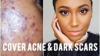 How I Cover My Acne and Acne Scars Full Coverage Foundation Routine  Flowerpush