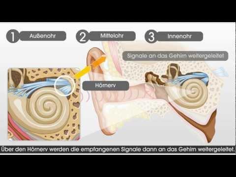 Wie das Gehör und das Hören mit einem Cochlea-Implantat funktioniert