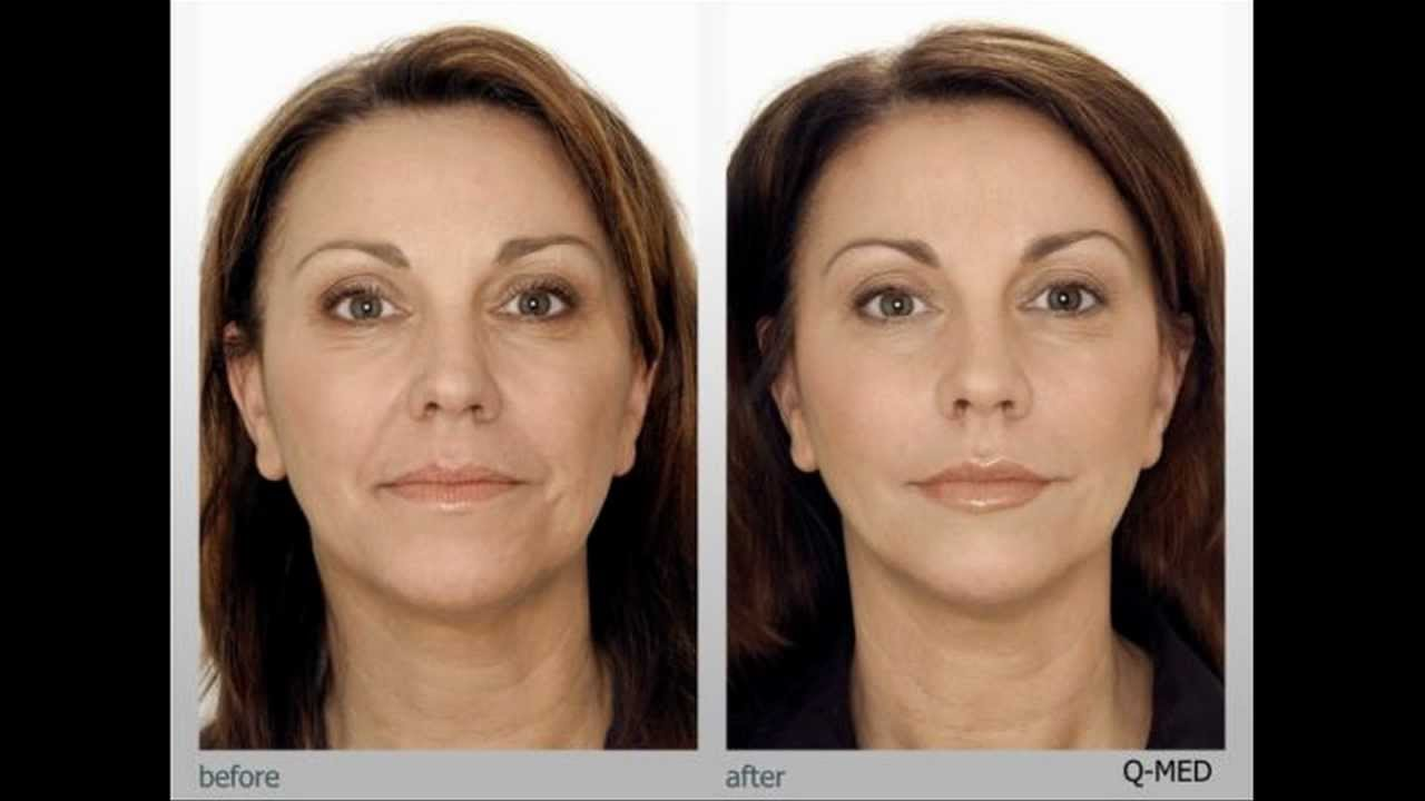 Best At Home Microdermabrasion Machine Youtube