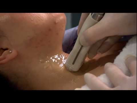 Ultrasound Training: Thyroid and Parathyroid Glands