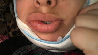 Broke my jaw 👳🏽♀️🍼💉 all liquid diet for 6 weeks