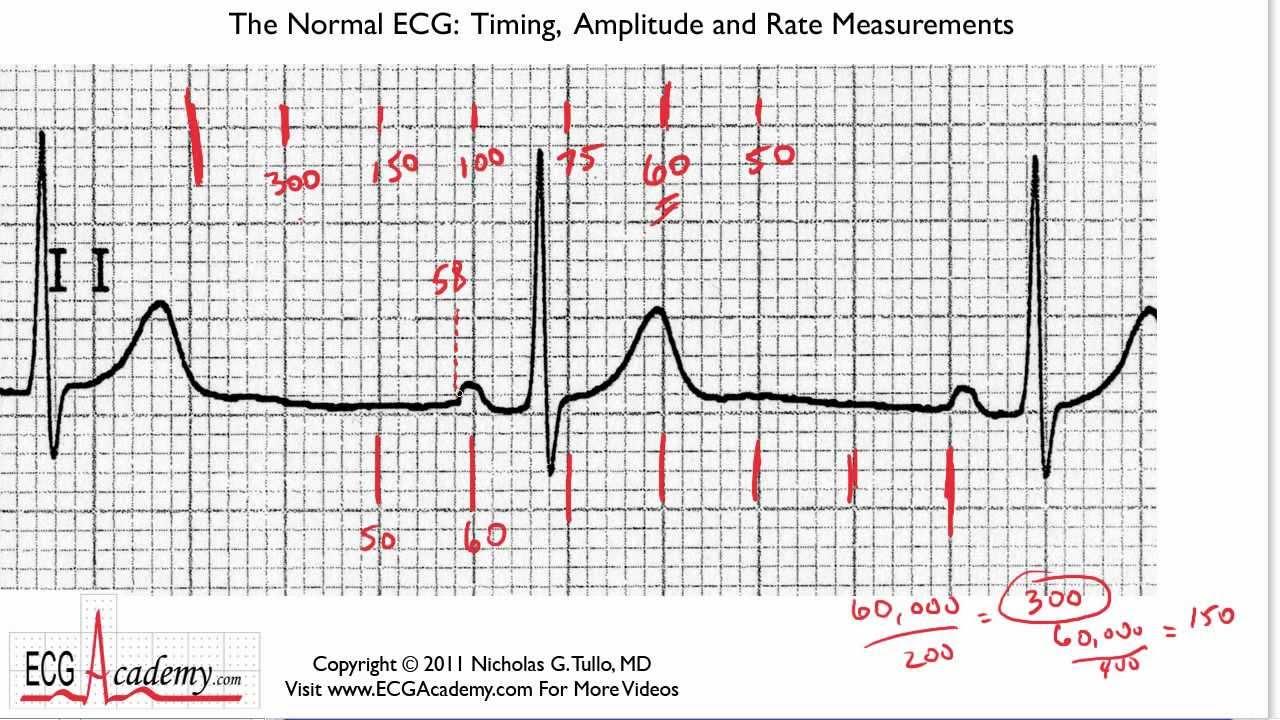 How that heart rate on ekg strip