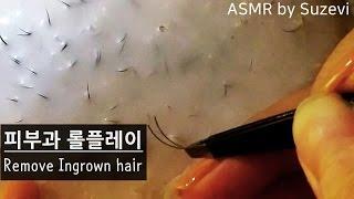 ASMR 'Remove Ingrown hair/ dermatology RP' by Suzevi (whispering)