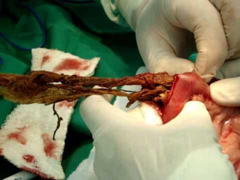 Opstrukcija creva