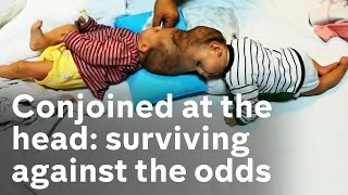 The conjoined twins who survived miracle separation surgery