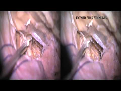 Trans-cavernous Transpetrosal Approach: 3-D Demonstration in Cadavers