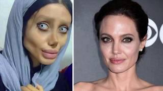 Si sottopone a 50 interventi chirurgici per Angelina Jolie