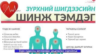 Зvрх судасны эмгэгийг хvний амьдралын буруу хэв маягаас vvсдэг өвчин гэж vздэг. Тэгвэл зүрх судасны өвчнөөс хэрхэн сэргийлэх вэ?