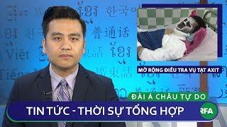 Tin nóng 24h 15/02/2019   Công an Quảng Ngãi mở rộng điều tra vụ Việt kiều Canada bị tạt axit