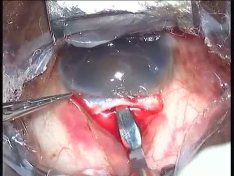 Brunescent cataract SICS - Dr Prathmesh Mehta