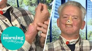 A Grizzly Bear Ripped My Face Off and Now I'm Regrowing My Nose on My Arm | This Morning