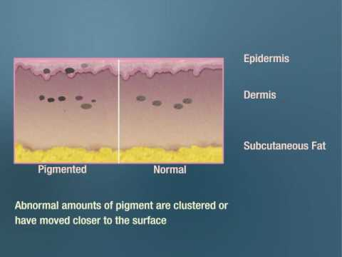 Skin Pigment Removal