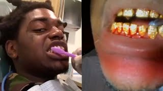 kodak-black-diamond-teeth-wont-stop-bleeding-at-dentist-office.jpg