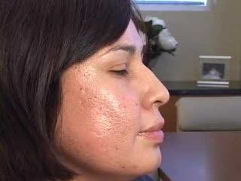 Plastic Surgery Cross Acne Scarring Treatments Journey