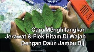 Cara Cepat Alami Hilangkan Jerawat & Flek Hitam Di Wajah Dengan ...