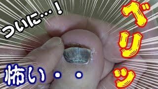【爪下血腫】ついに・・!ドキドキハラハラの瞬間!