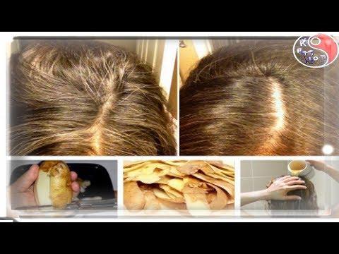 최신 새:머리카락에 감자의 영향. KpKr