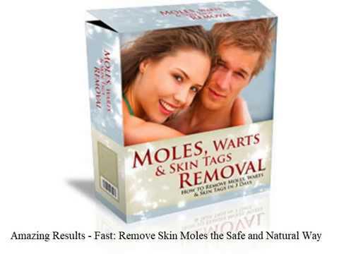 Get rid of skin moles naturally