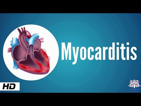 Myocarditis, Causes, Signs and Symptoms, Diagnosis, Treatment