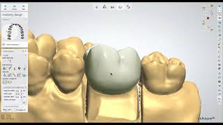 Meshmixer Dental Arch Edit Tutorial - SeattleBraces