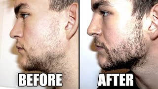 Trying a Beard Growth Kit for 2 Months - My RESULTS   CPH Grooming Review