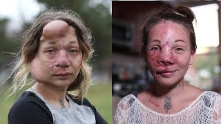 Mum Has Medical Balloons Removed From Her Face