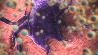 nanomedicine: nanotechnology for cancer treatment