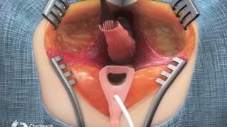 Surgical Treatment for Short Common Channel Cloaca – Posterior View | Cincinnati Children's
