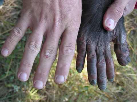 Ape Hand Deformity