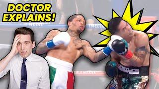 Gervonta Davis VICIOUS KNOCKOUT vs Leo Santa Cruz - Doctor Reacts & Explains What Happened