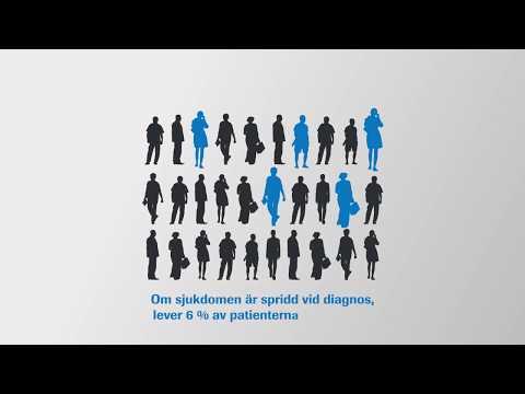 Urinblåsecancer - Fakta