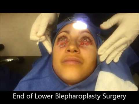 Lower Blepharoplasty to Reduce Dark Circles & Remove Eyelid Bags