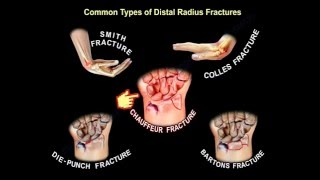 Common Types Of Distal Radius Fractures - Everything You Need To Know - Dr. Nabil Ebraheim