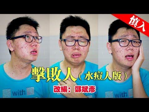 【改编翻唱】郑斌彦-击败人(水痘人版) 原唱:黄明志